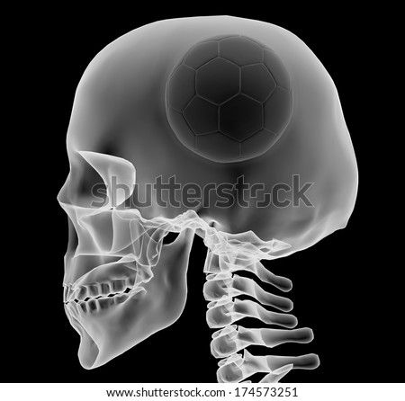 X-ray of a head with soccer ball instead of a brain, 3d illustration - stock photo