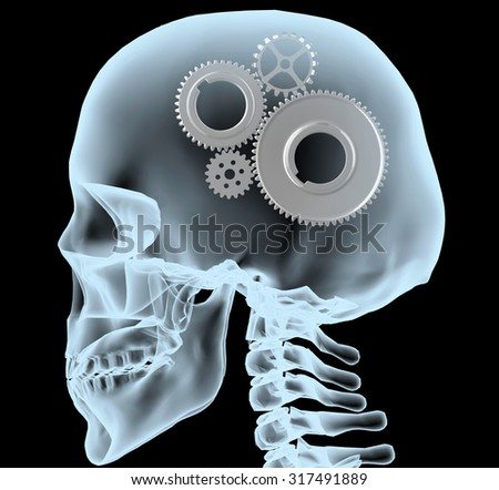 X-ray of a head with the gears instead of the brain, 3d illustration - stock photo