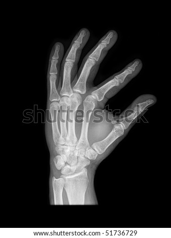 x-ray of a human hand isolated on black background