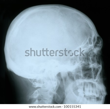 X-ray of a human skull, from profile - stock photo