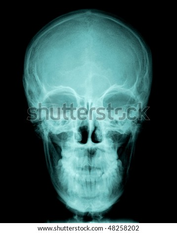 X-ray of a human skull, frontview on black background - stock photo