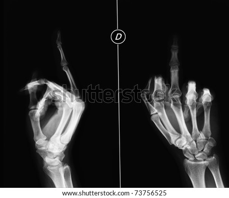 X-ray of a medium finger - stock photo