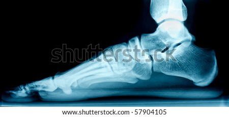 X-ray of a right foot from the side - stock photo