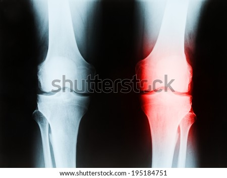 X-ray of a senior male right and left knee showing tibia and fibula bones of both legs, with patient's left joint area highlighted in red