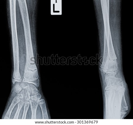 X ray of a wrist. Some film grain visible - stock photo