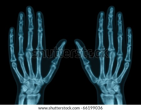 X-ray of both hands. Concept of exam. - stock photo