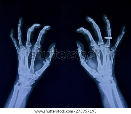 X ray of both hands, female