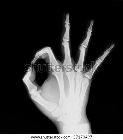 X-ray of both human hand (OK!) - stock photo