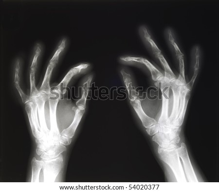 X-ray of both human hands in pinching position, space for copy - stock photo