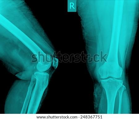 X-ray of both human knee - stock photo