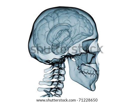 X-Ray of brain and skeleton.Isolated on white background - stock photo