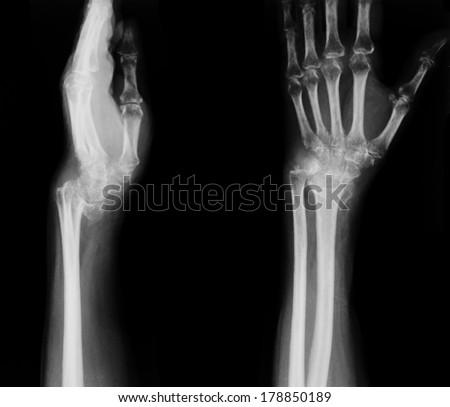 X-ray of broken wrist - stock photo