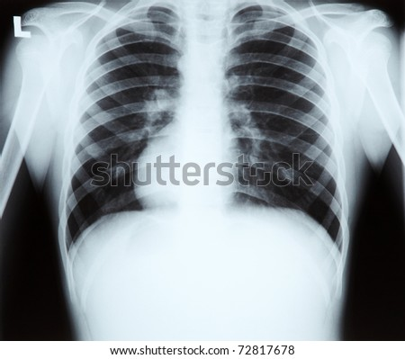 X-ray of chest and lungs - stock photo