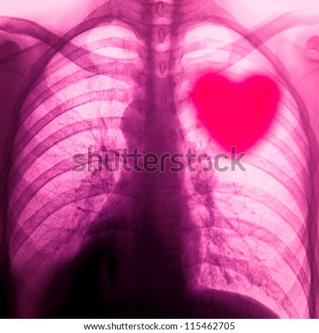 x-ray of chest of human pink abstract - stock photo