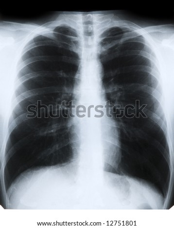 X-ray of chest on previewer - stock photo