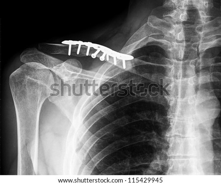 X- ray of collarbone - stock photo