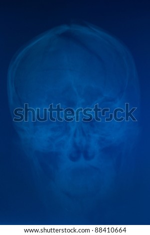 X-ray of deformed skull front - stock photo