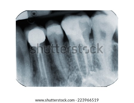 X-ray of dental Filling and revitalization - stock photo