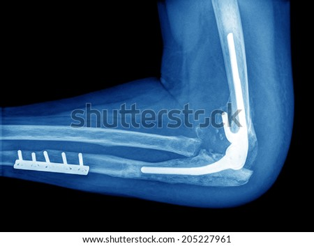 X-ray of elbow on black background - stock photo