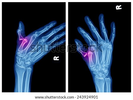 x-ray of hand fractures  - stock photo