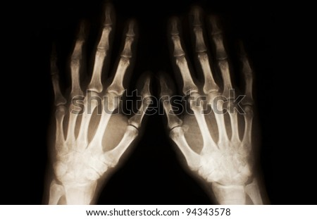 X-ray of hands - stock photo