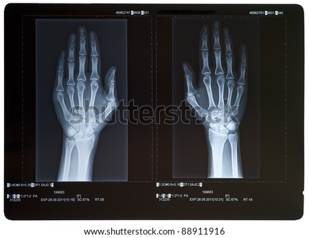 X-ray of hands. Female. - stock photo