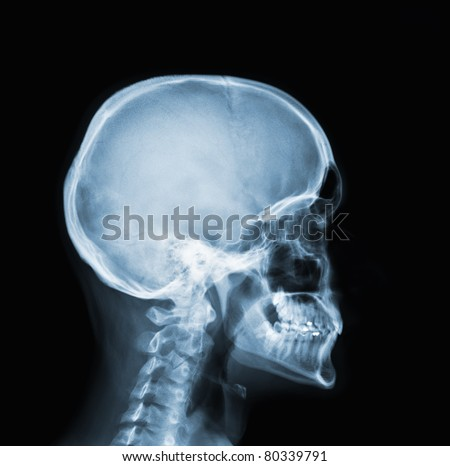 X-ray of head  / Many others X-ray images in my portfolio. - stock photo