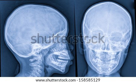 X-ray of head,skull x-rays image