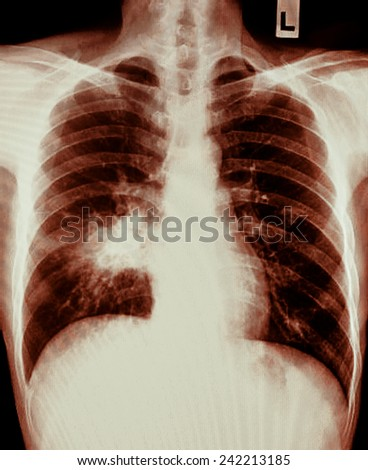 X-ray of human cancer lungs - stock photo