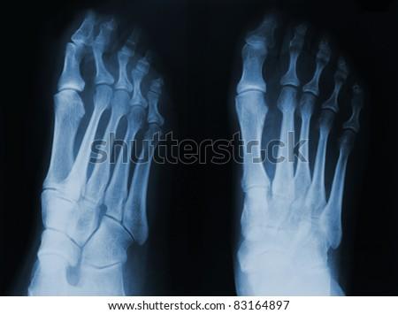 X-ray of human foot. - stock photo