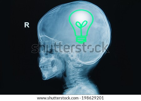 x-ray of human head with light bulb in a brain ,concept think green healty - stock photo