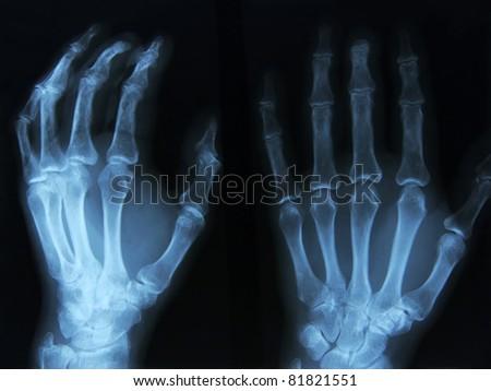 X-ray of human left hand. - stock photo