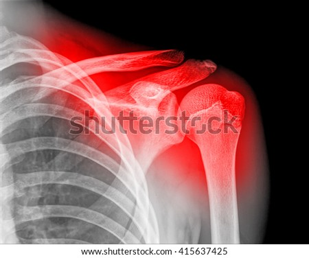 X-ray of human painful shoulder on back background - stock photo