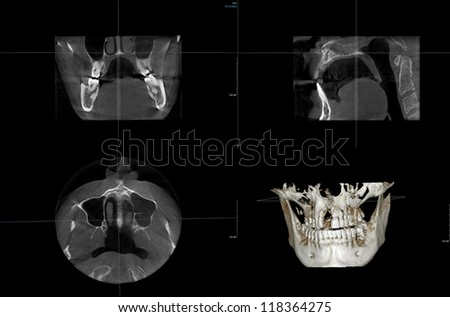 X-ray of human teeth