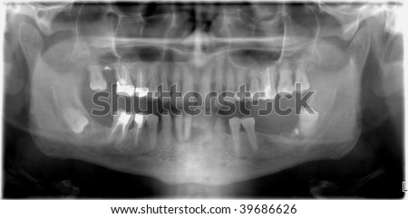 X-ray of jaw with missing teeth - stock photo
