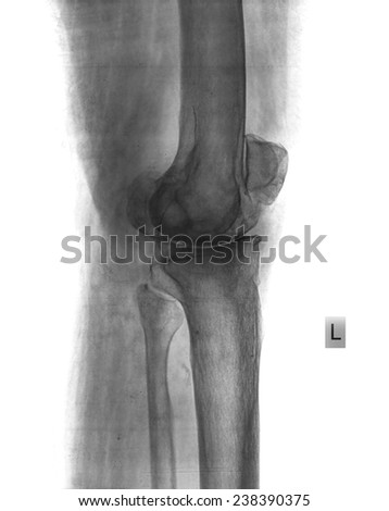 x-ray of knee - stock photo