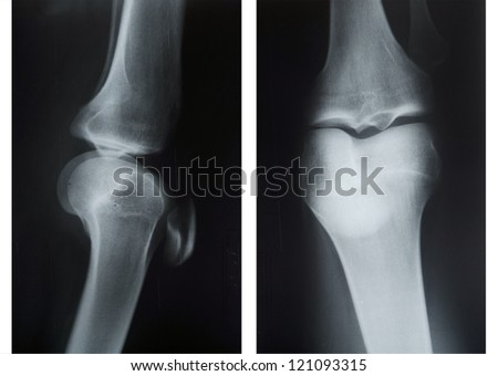 X-ray of knee caps in two positions - stock photo