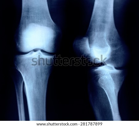 X-ray of knee joint - stock photo