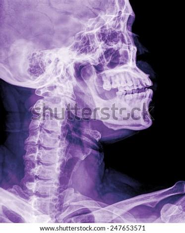 x-ray of neck - stock photo