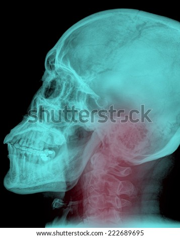 X-ray of painful neck - stock photo