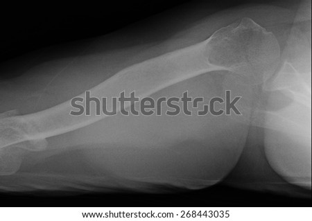 X-ray of shoulder joint.