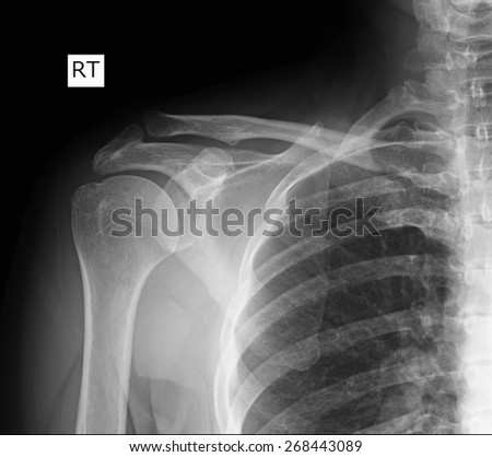 X-ray of shoulder joint. - stock photo