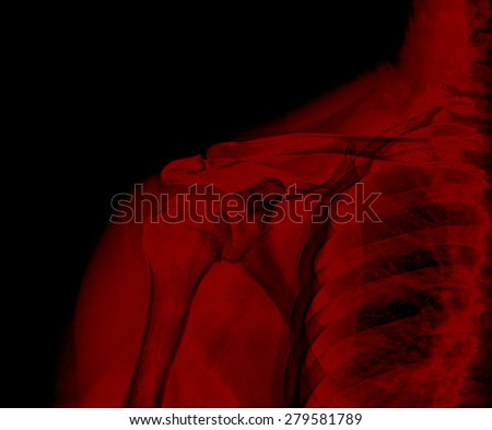 X-ray of shoulder joint , red color - stock photo