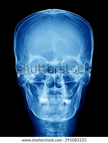 X-ray of skull - stock photo