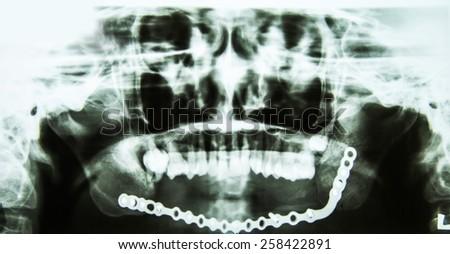 X-ray of teeth, stomatology concept - stock photo
