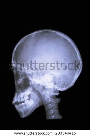 X-Ray Of The Brain