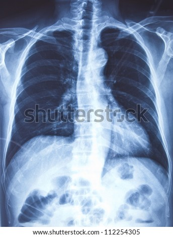 X-ray of the chest - stock photo