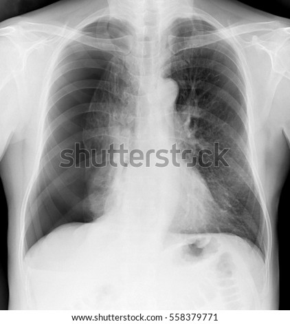X-ray of the chest of a man with a pneumothorax