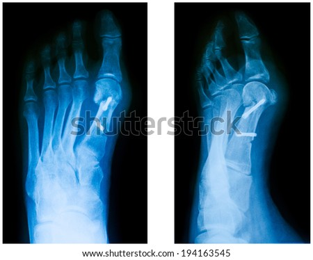 X-ray of the front foot after Hallux Valgus surgery - stock photo