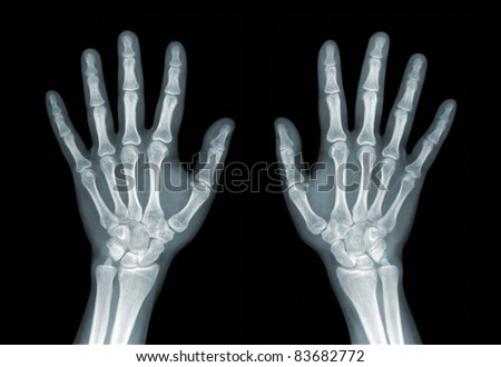X-ray of the hands on black background - stock photo